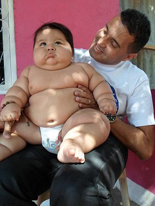 Colombia's Fattest Baby who Weighs 3.1stone – 19.7kg Rescued by Charity and Undergoes Life-Save Treatment