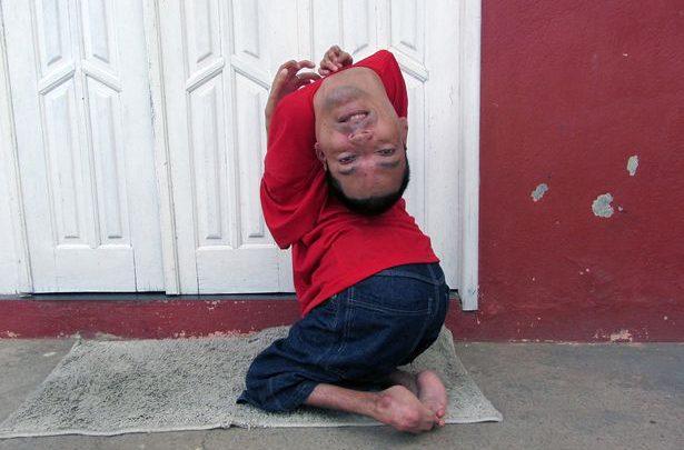 Body bizarre: Meet the man born with his head UPSIDE-DOWN