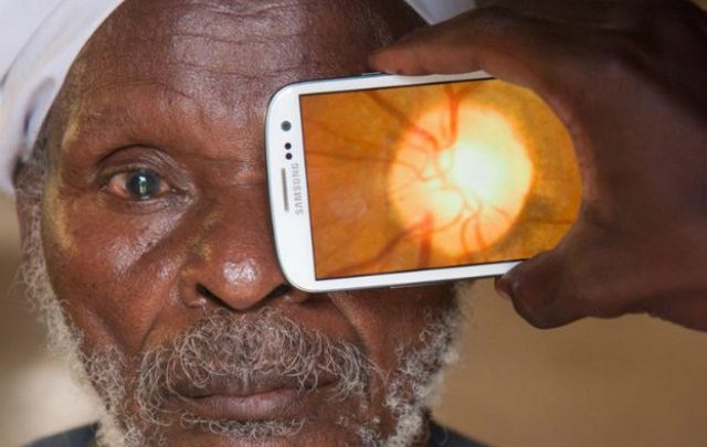 New Device Performs Eye Exams with Smartphone