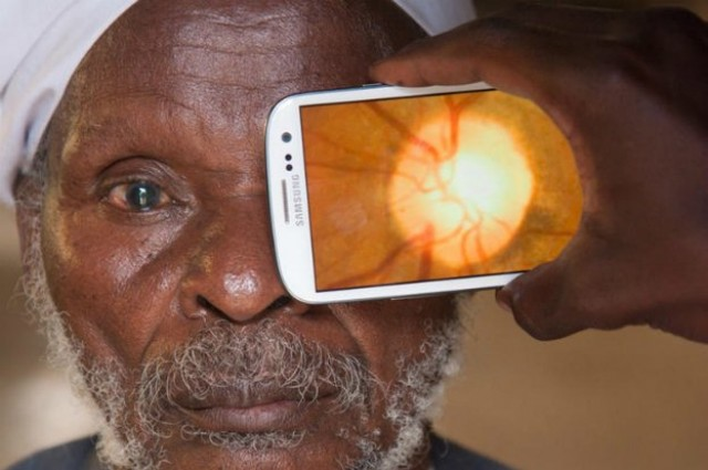 New Device Performs Eye Exams With Smartphone1