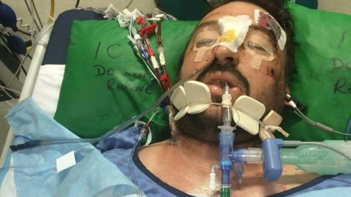 Father Of Six Hit By Lightning That Was '5 Times Hotter Than The Sun'