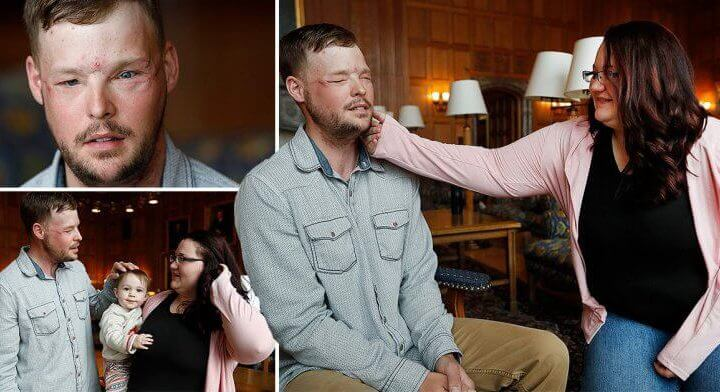 Widow Sees Dead Husbands Face Again 10 Years After It Was Donated To Transplant Patient